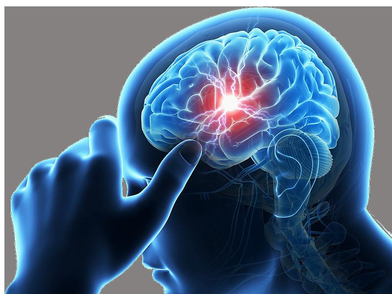 Risk carotid stroke chiropractic care